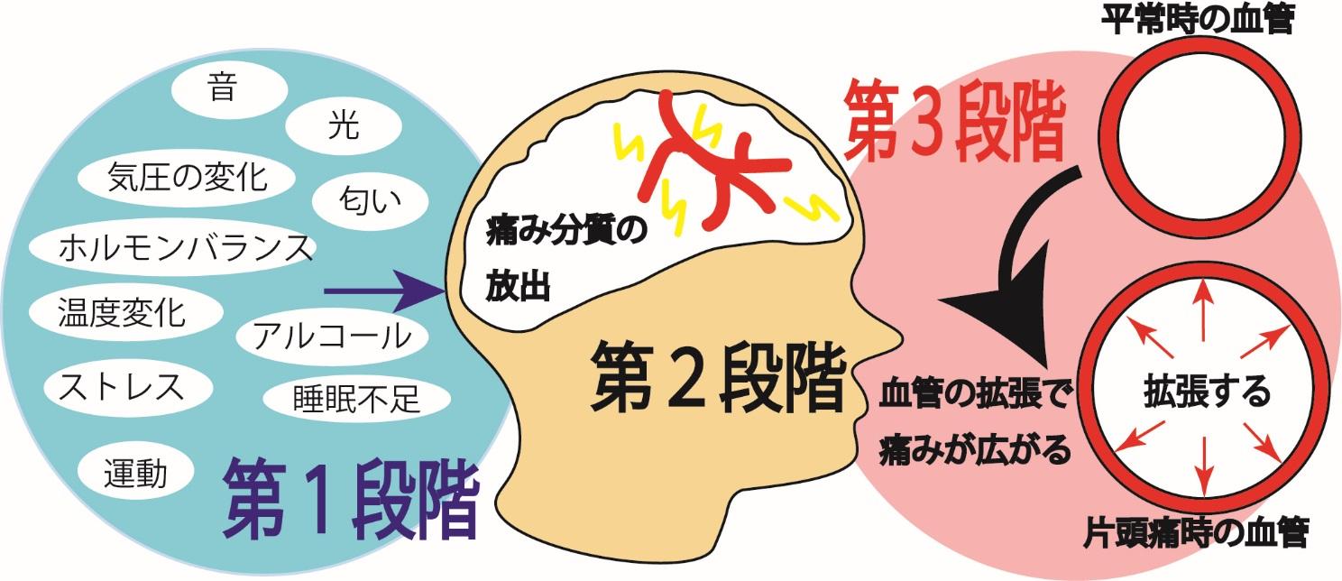 偏 頭痛 に 効く 薬